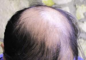Artificial hair implant