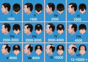 Exoderm Artificial Hair