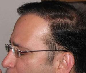 Exoderm Artificial Hair Implant