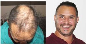 Exoderm 5000 Artificial Hair Implant